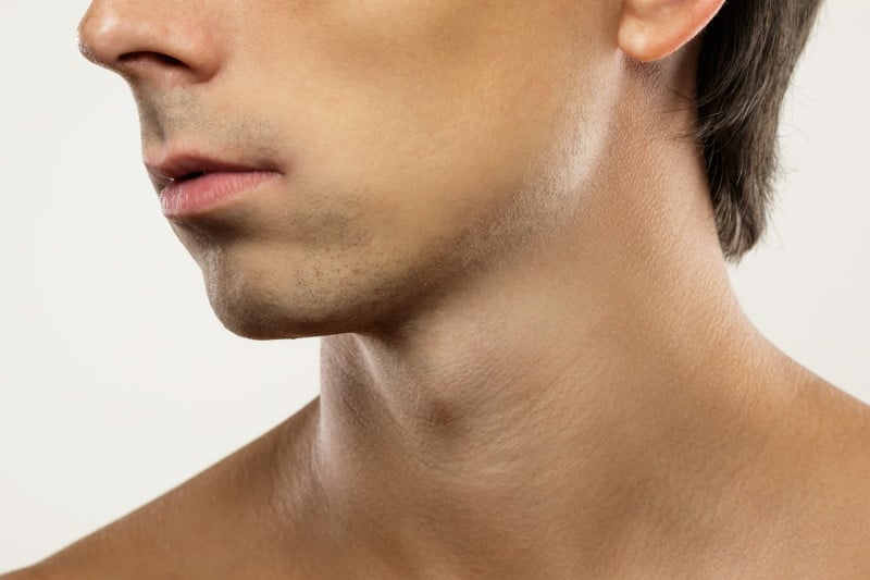 Why Isn't Your Beard Growing On Your Jawline
